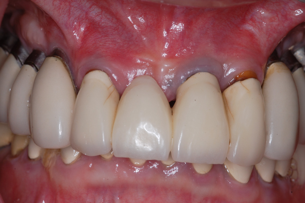 replacement-of-several-teeth-02.jpg