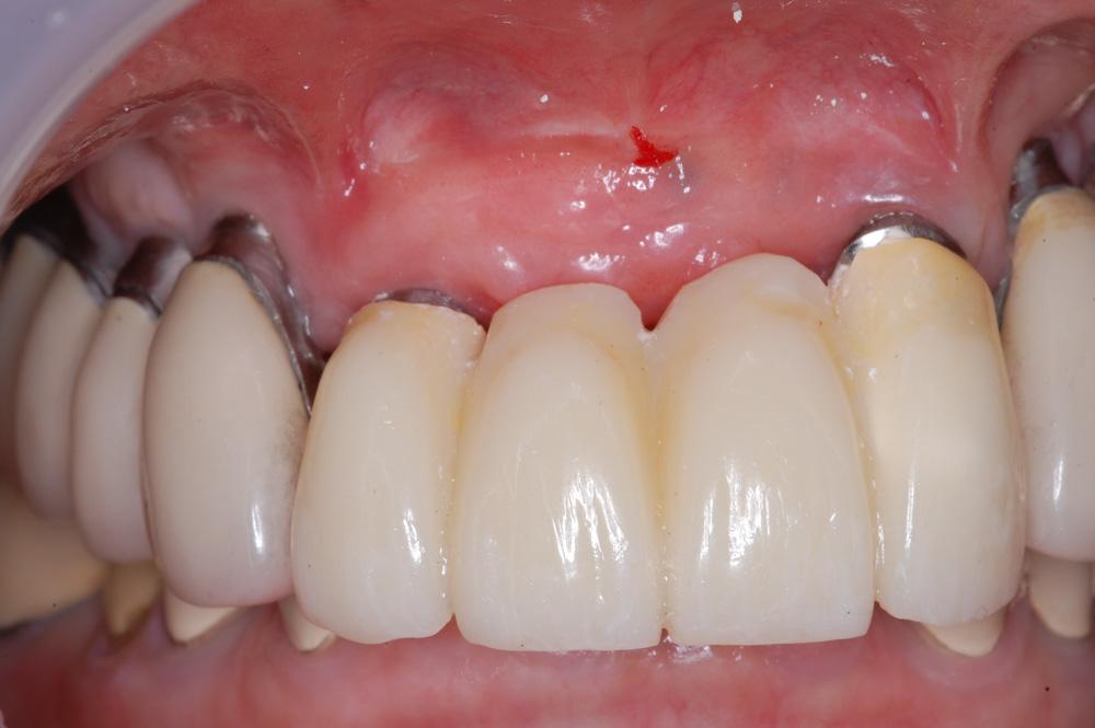 replacement-of-several-teeth-03.jpg