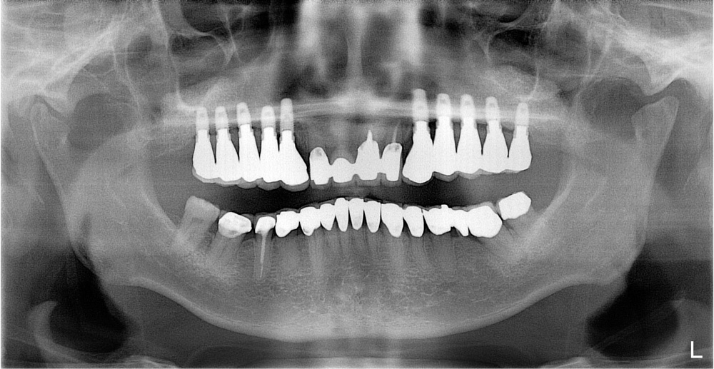 replacement-of-several-teeth-05.jpg