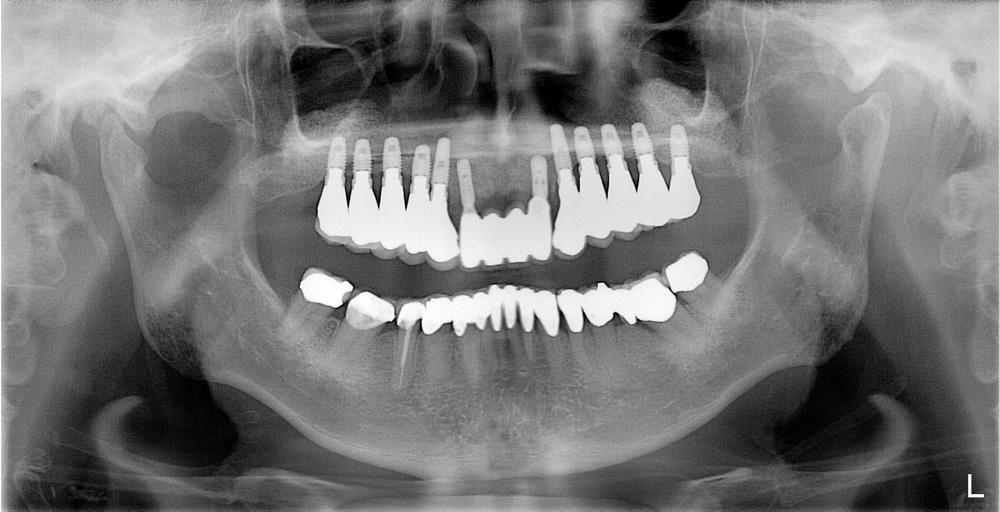 replacement-of-several-teeth-06.jpg