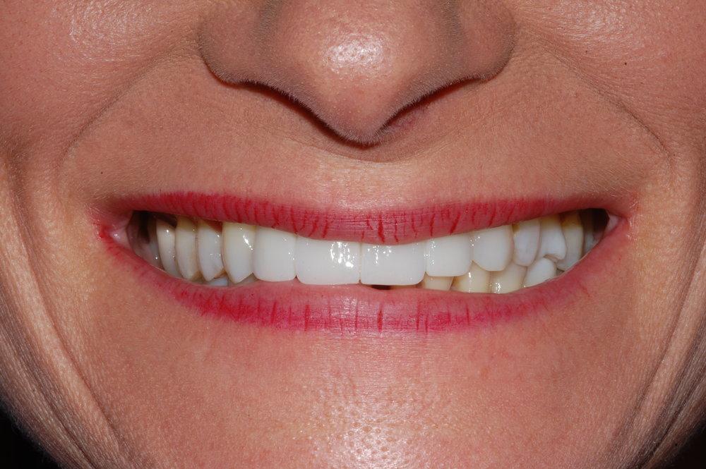 Missing Upper Anterior Teeth