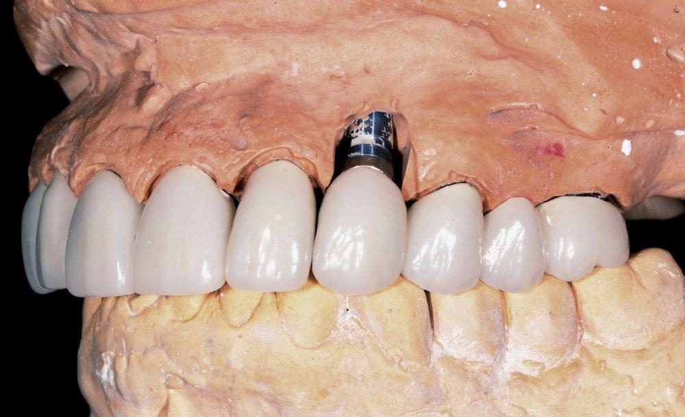 Implantology -