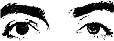 Fig. 5.  Pharmacologic sympathetic stimulation, right-sided. Palpebral fissure wide open, protrusion, mydriasis. From Hollwich(16), with kind permission.