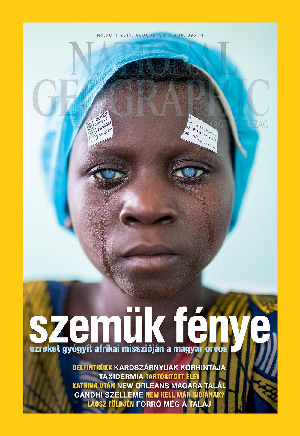 Cataract_COVkicsi.jpg