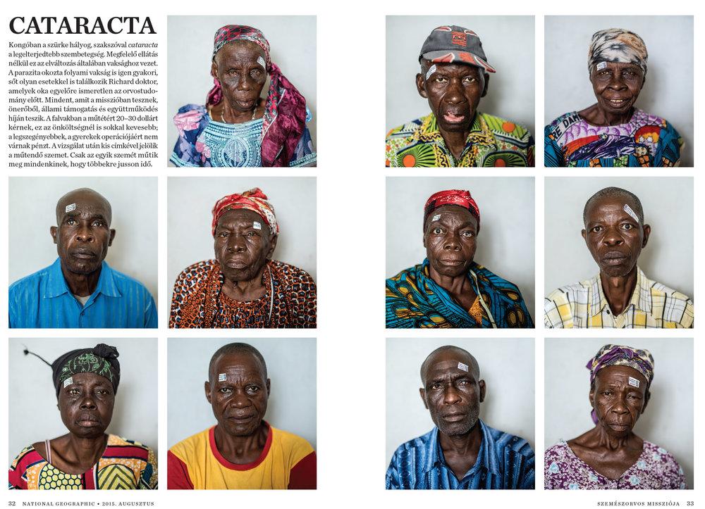 Cataract-7.jpg