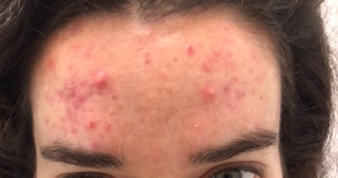 acne1.png