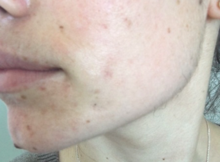 acne6.png
