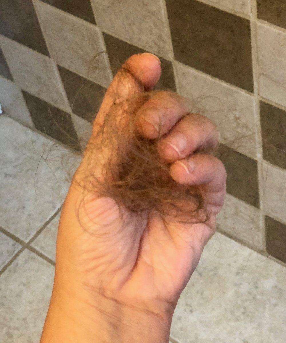 postpartum hair loss 2