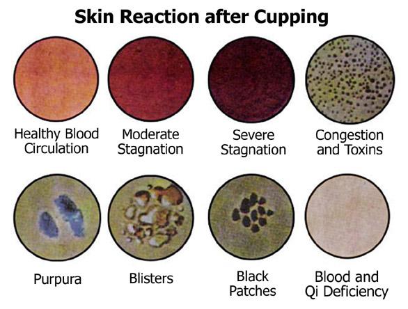 Cupping Skin Reaction .jpg