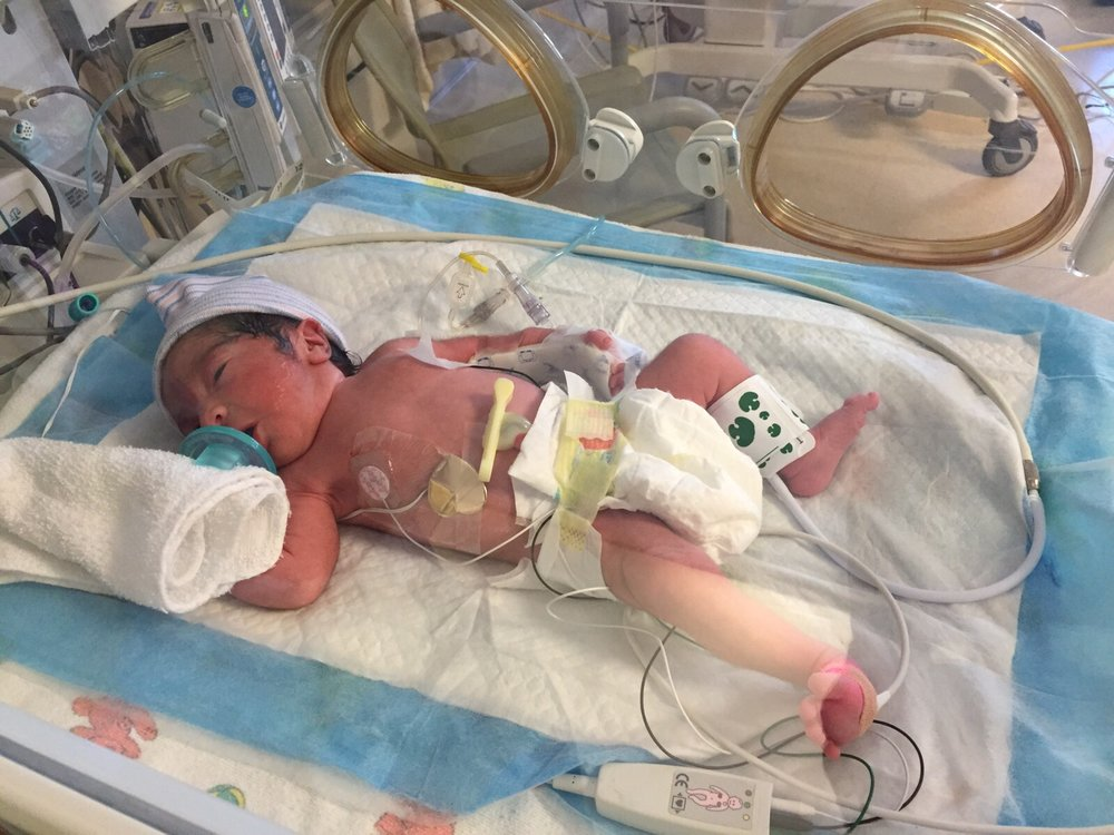 Difficult first week at the Neonatal Intensive Care Unit (NICU )