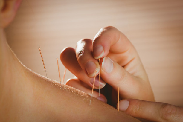 young-woman-getting-acupuncture-treatment_13339-270618.jpg