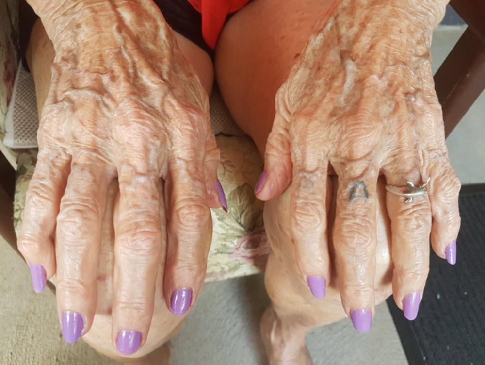 beryl-yourhands-yourstory.jpg