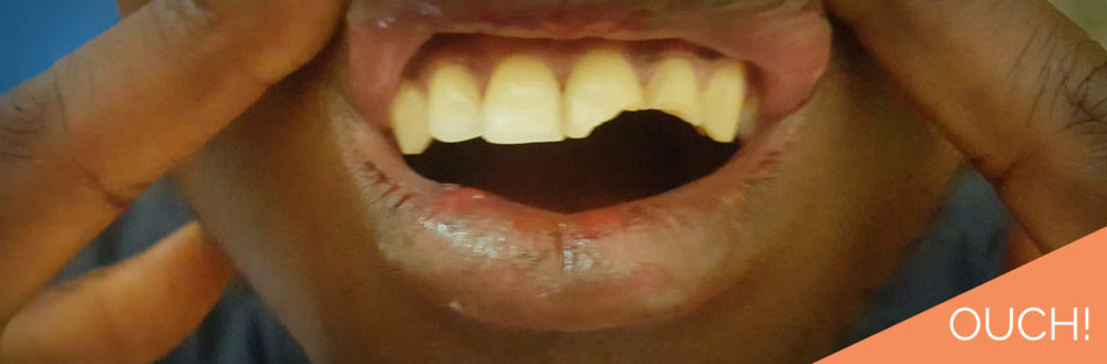 fractured-teeth-1024x337.jpg
