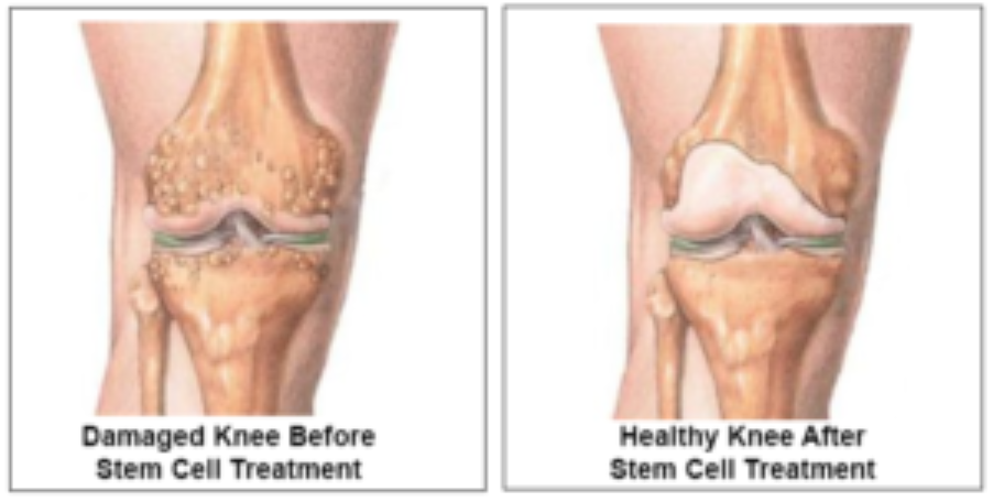 abawi-fit-stem-cells-treating-a-knee-joint.png