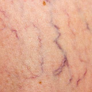 Spider Vein Treatment - Unsightly and uncomfortable spider or bulging veins are easily treated with injections.We ultrasound to see if an underlying vein condition is present.The skin is numbed and veins are injected with solution.The solution closes down the veins.The unsightly veins can take up to several months to fade.