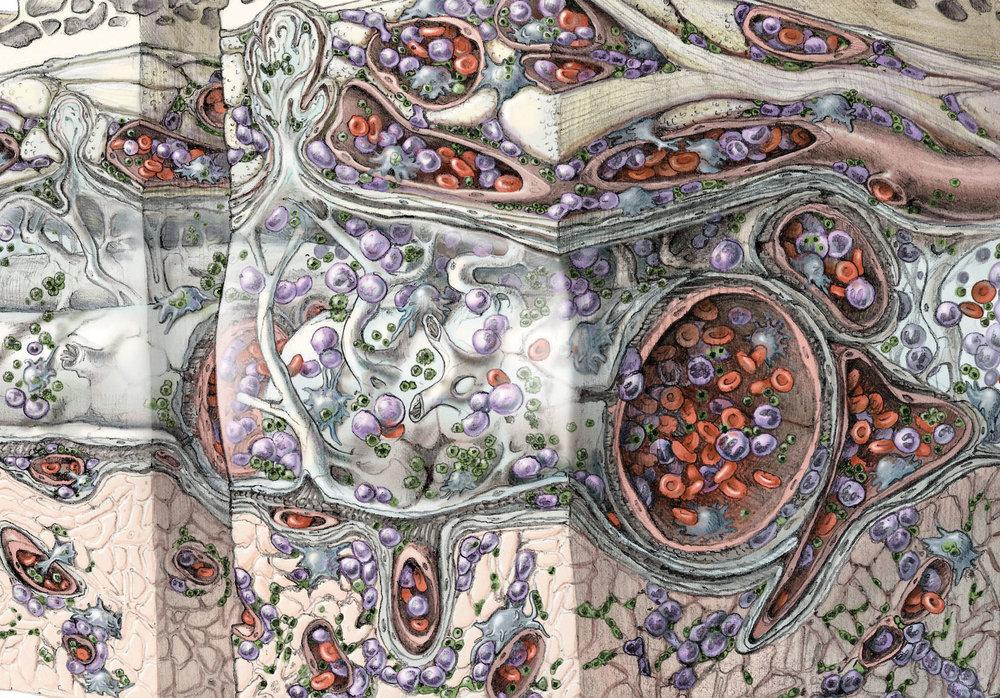 gauthier_Meningoencephalitis_closeup.jpg