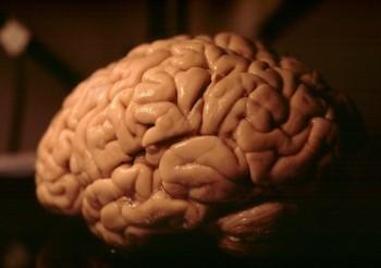 brain cut.jpg