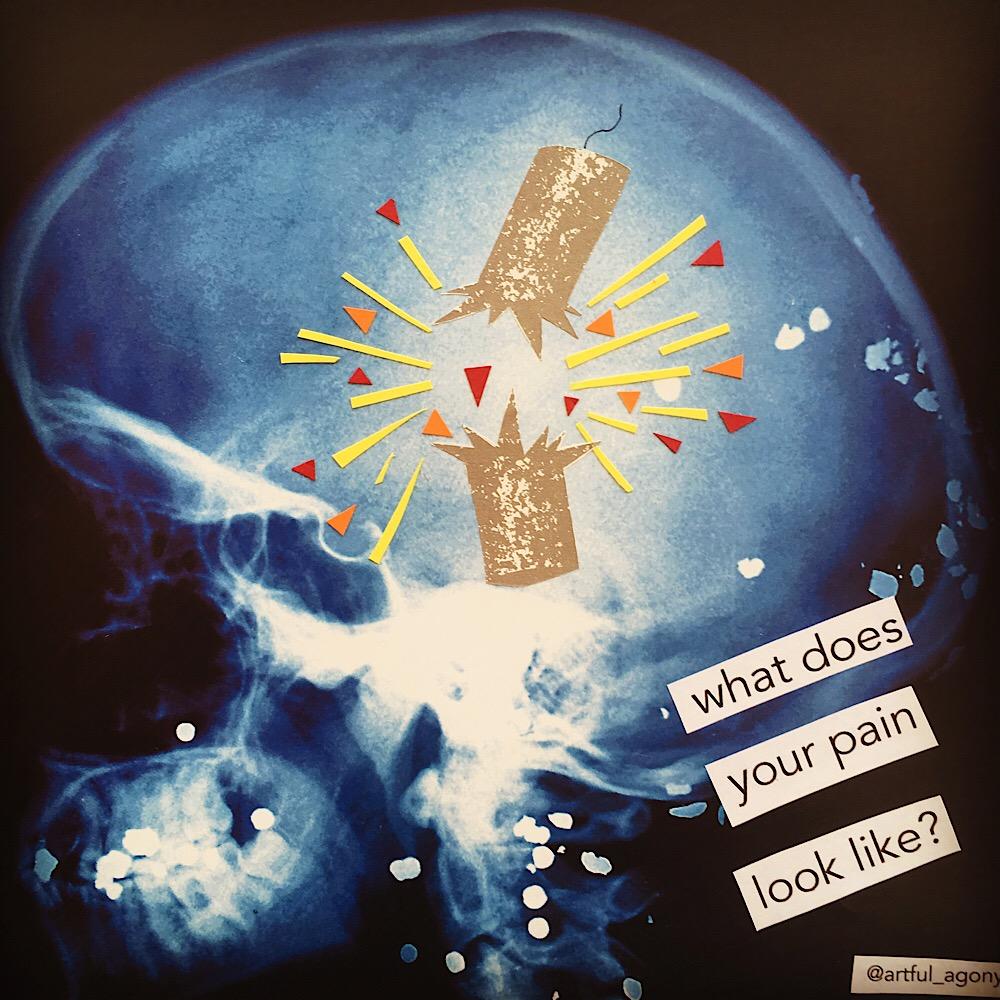 FIRECRACKER  'My pain looks like firecrackers exploding in my skull.'  @artful_agony