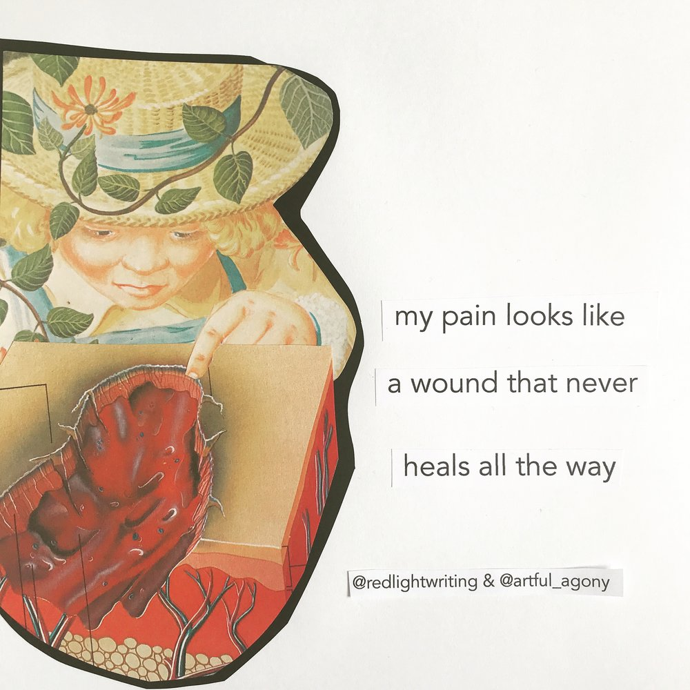 WOUND  'My pain looks like a wound that never heals all the way.'  submitted by @redlightwriting