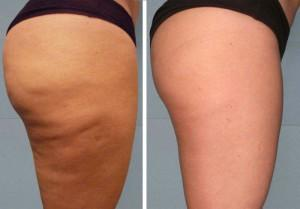 Cellulite before and after treating the area