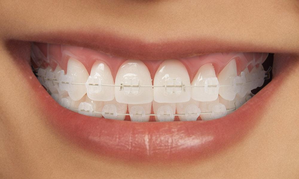 What is Orthodontics? -