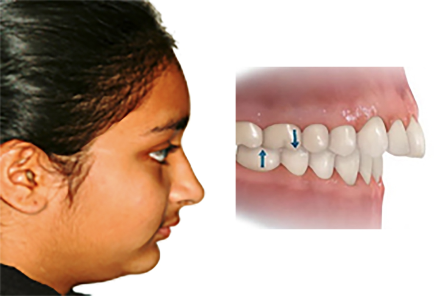Prominent top teeth with lower jaw set-back -