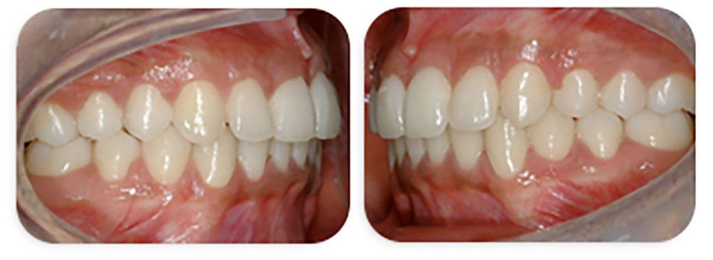 Post treatment results -