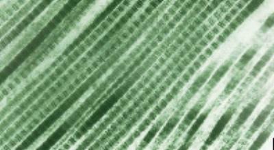 Electron Microscope Image of Excellagen Fibrillar Collagen
