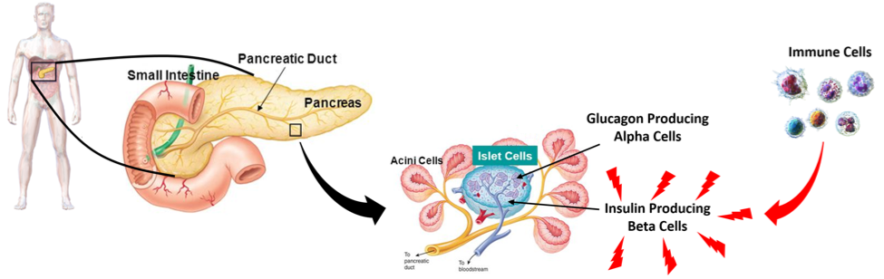 Figure 5.   Type-1 Diabetes Initiation.  Immune cells auto-react to the insulin-producing beta cells found in the islet region of the pancreas.