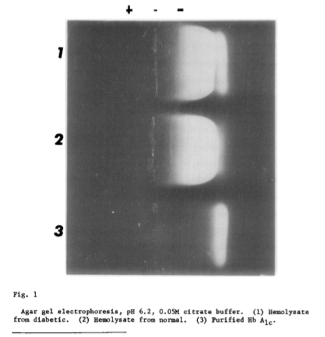 Figure 2   Hemoglobin Bands . 1) Diabetic, 2) Normal Healthy Subject, and 3) Purified HbA1c (Rahbar, Blumenfeld, & Ranney, 1969)