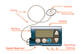 Figure 14 Medtronic Insulin Pump