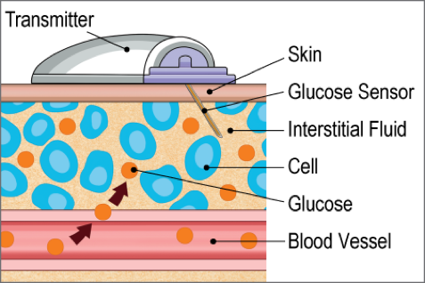 Figure 15   Modified Illustration of Continuous Glucose Monitor   and Dexcom Receiver Devices