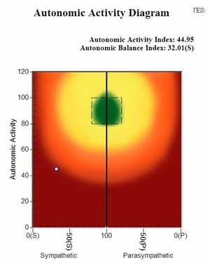 HRV AutonomicActivityDiagram.jpg