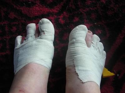 Marathon des Sable -feet