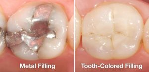 metal-vs-tooth-colored-fillings-300x146.jpg