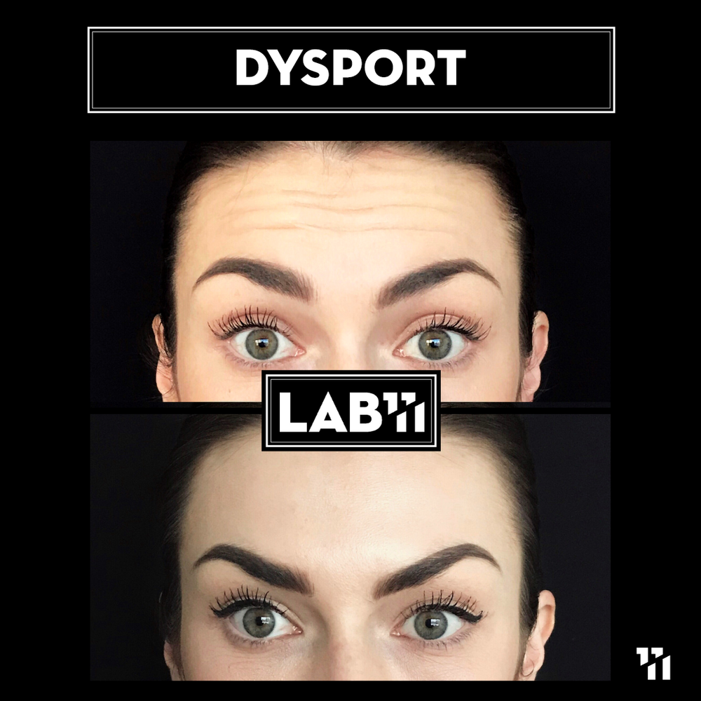 Dysport2.png