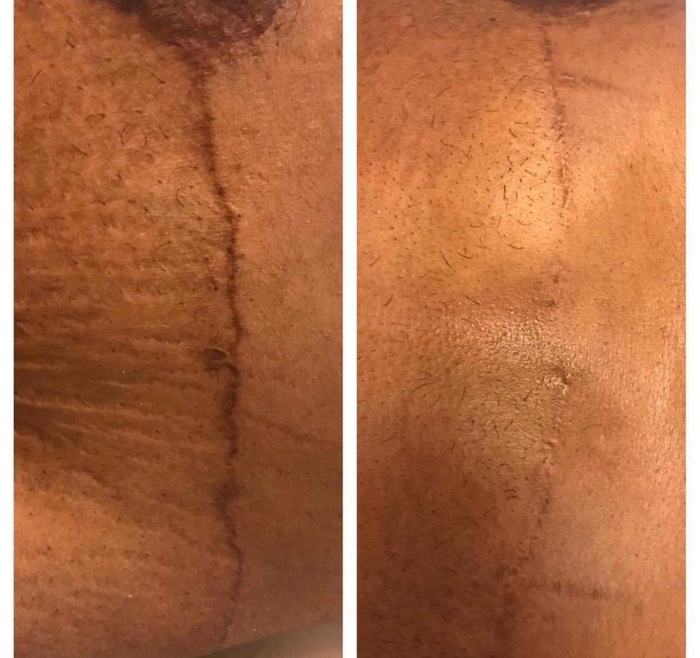 Stretch Mark / Scar Reduction