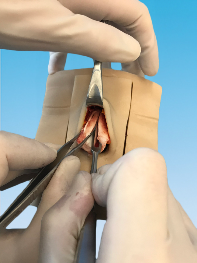 Utilization of swivel blade to harvest septal cartilage with remaining L-strut. Extensively tested and realistic cartilage feel and behavior.