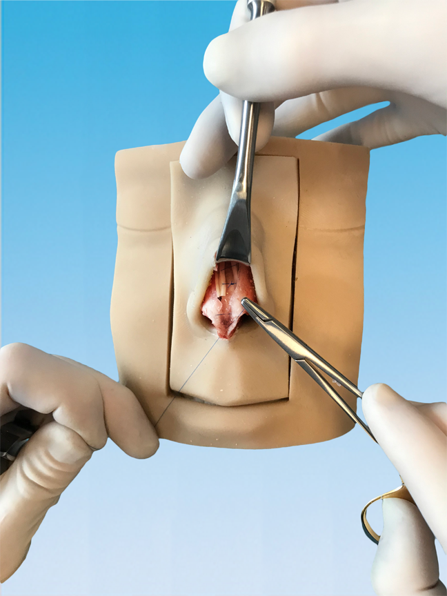Perform endless grafting techniques including spreader grafts, columellar struts, batten grafts and much more. Practice endless tip suturing and contouring technique possible.