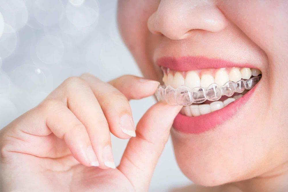 trü orthodontics