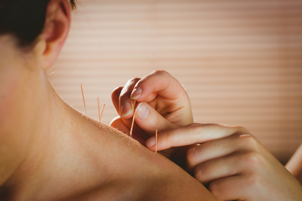 Acupuncture Needles being inserted into patient