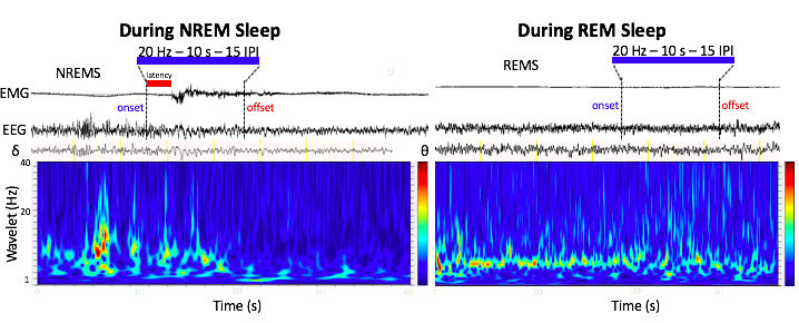 Optogenetic stimulation of lateral hypothalamic GABA neurons induces rapid arousal from NREM, but not REM sleep. These findings are consistent with those of  Herrera et al., 2016  (image credit: JCB) (Note: These data are preliminary and are subject to change, any use without the author's consent is forbidden).
