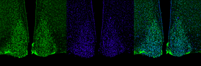 The suprachiasmatic nuclei (pictured above) serve as the master clocks controlling mammalian circadian rhythms  (Credit: Jeremy C. Borniger, PhD; Stanford)