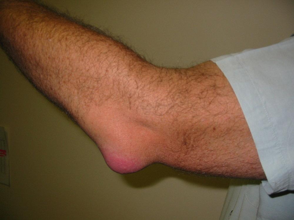 Olecranon Bursitis-physiotherapy-darlington-inflammation