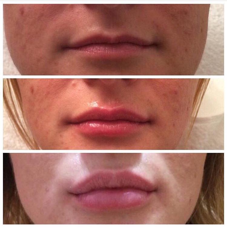korekcija usana hijaluronom iz dva akta