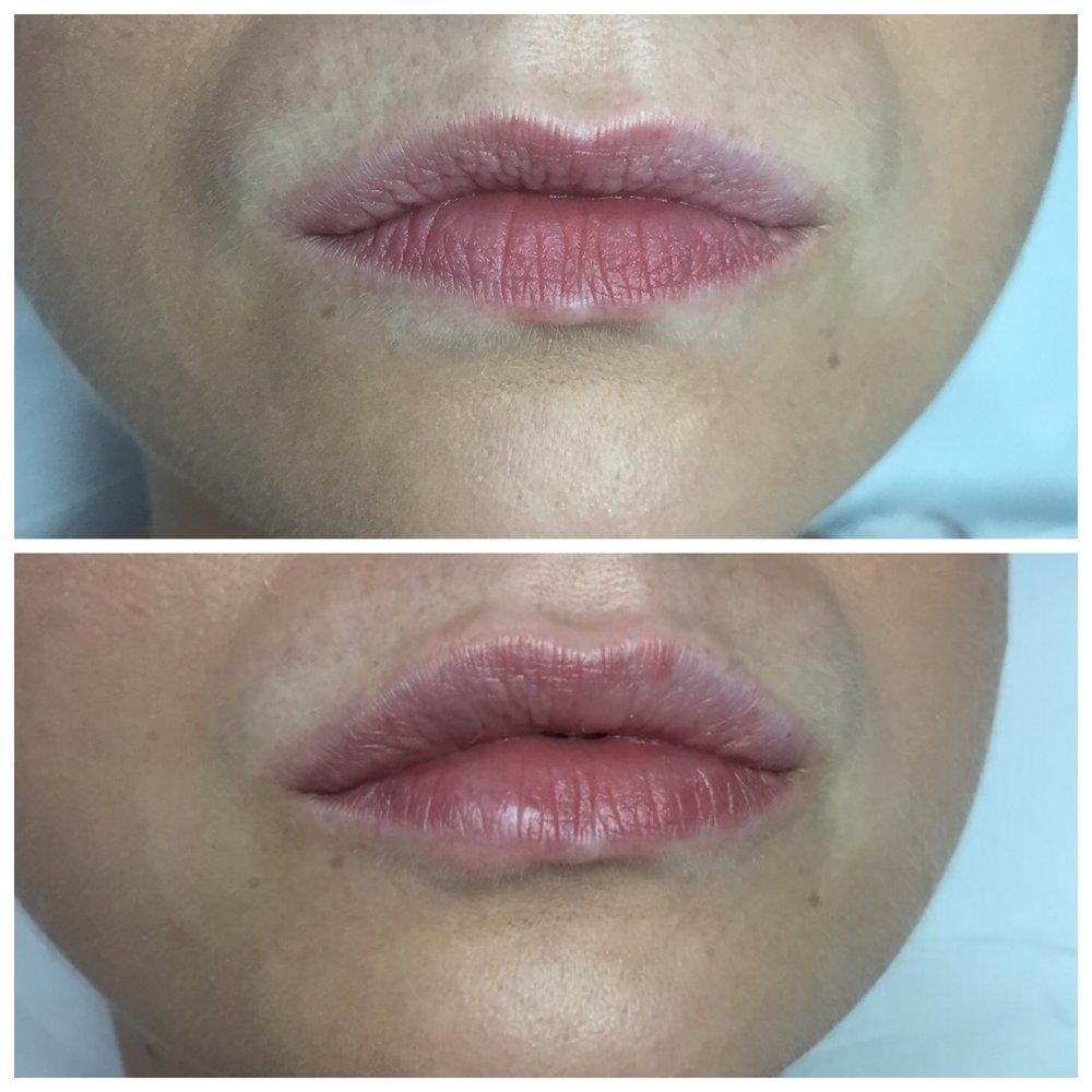 korekcija usana hijaluronom