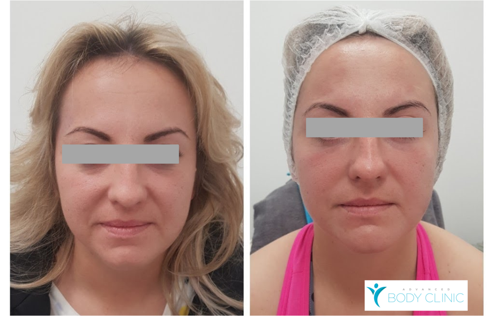 HIFU Full Face Lift (picture on the right immediately after the treatment)