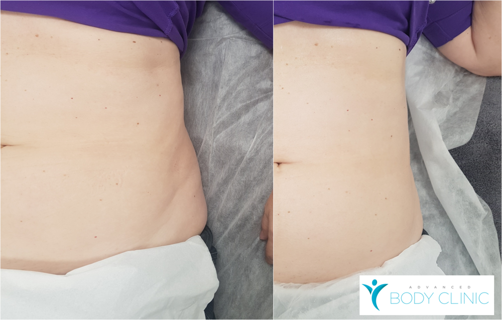 HIFU Fat Reduction (right side before and immediately after the treatment)