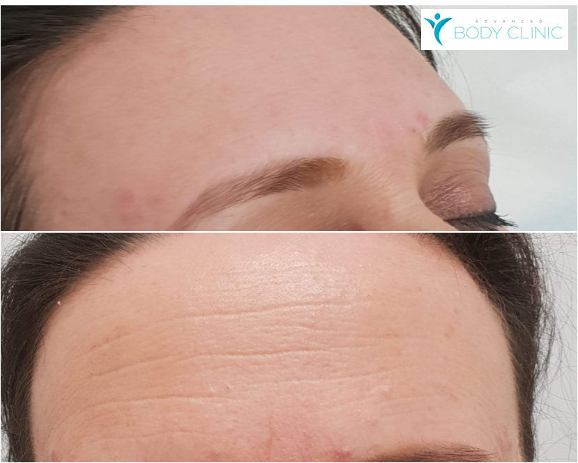 HIFU Forehead Wrinkle Reduction
