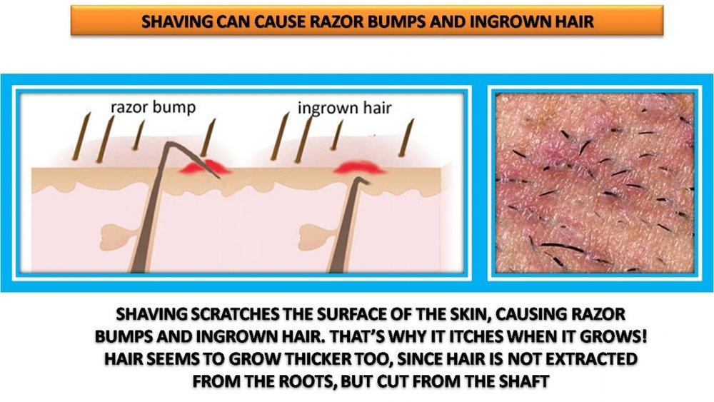 effects-of-shaving.jpg